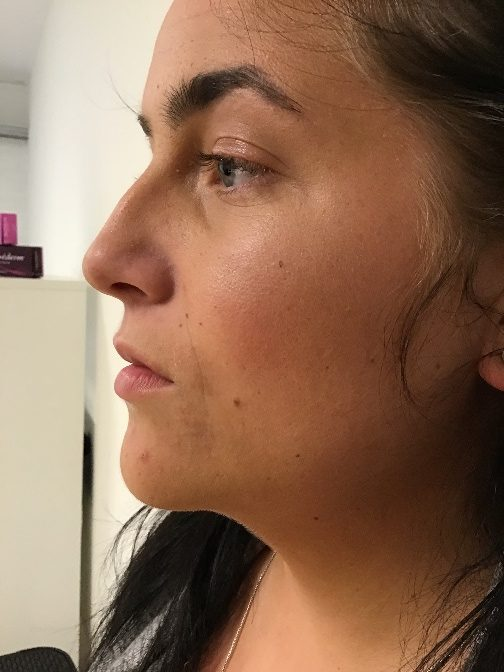 1 ml. Dermal filler - Før behandlingen