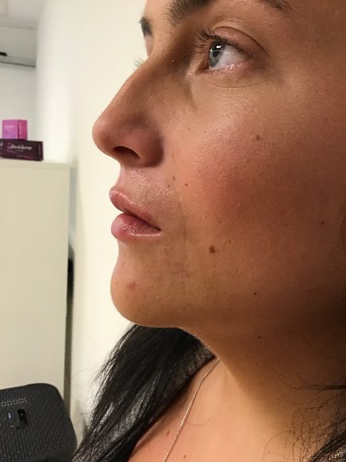 1 ml. Dermal filler - Efter behandlingen